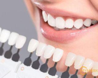 სტომატოლოგიურ სრულ მომსახურეობას 50% ფასდაკლებით